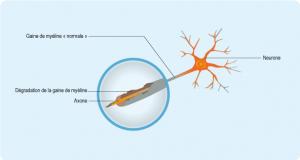 sep-axone-neurone-journeee-mondiale.png